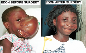 Mercy Ships provides laife transforming surgery for people in povertyrcy Sh