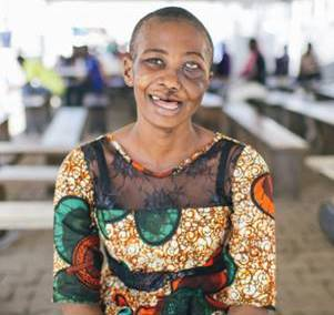SAlematu after free tumour removal surgery on the Mercy Ships